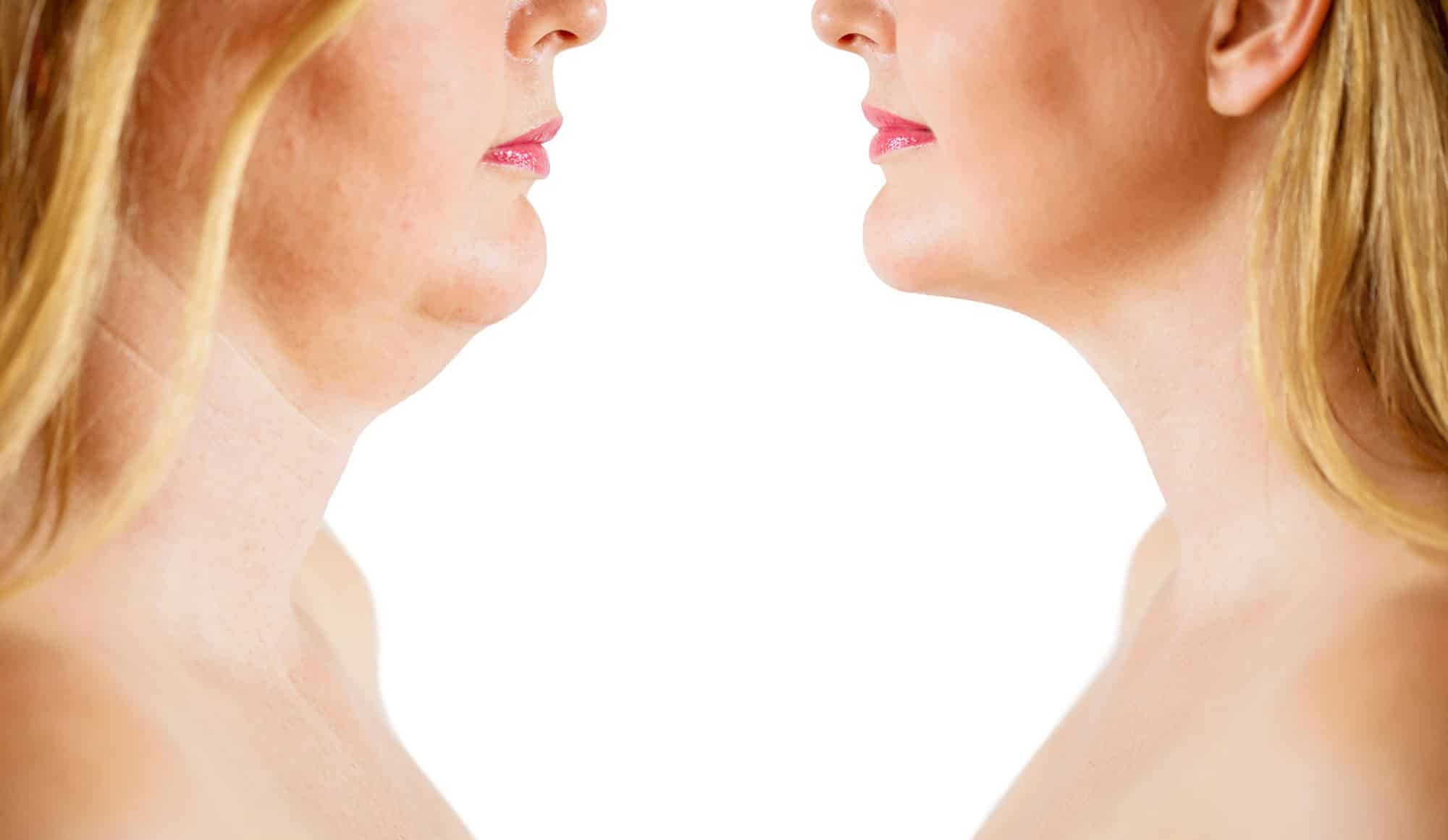 How to Get Rid of Double Chin & Chin Fat